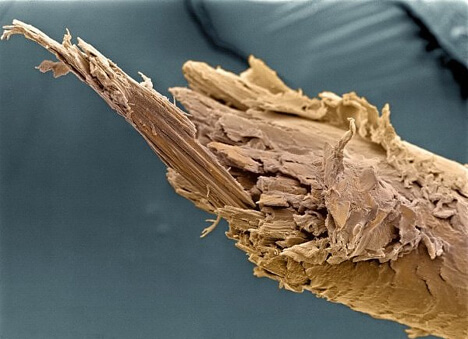Split end of human hair